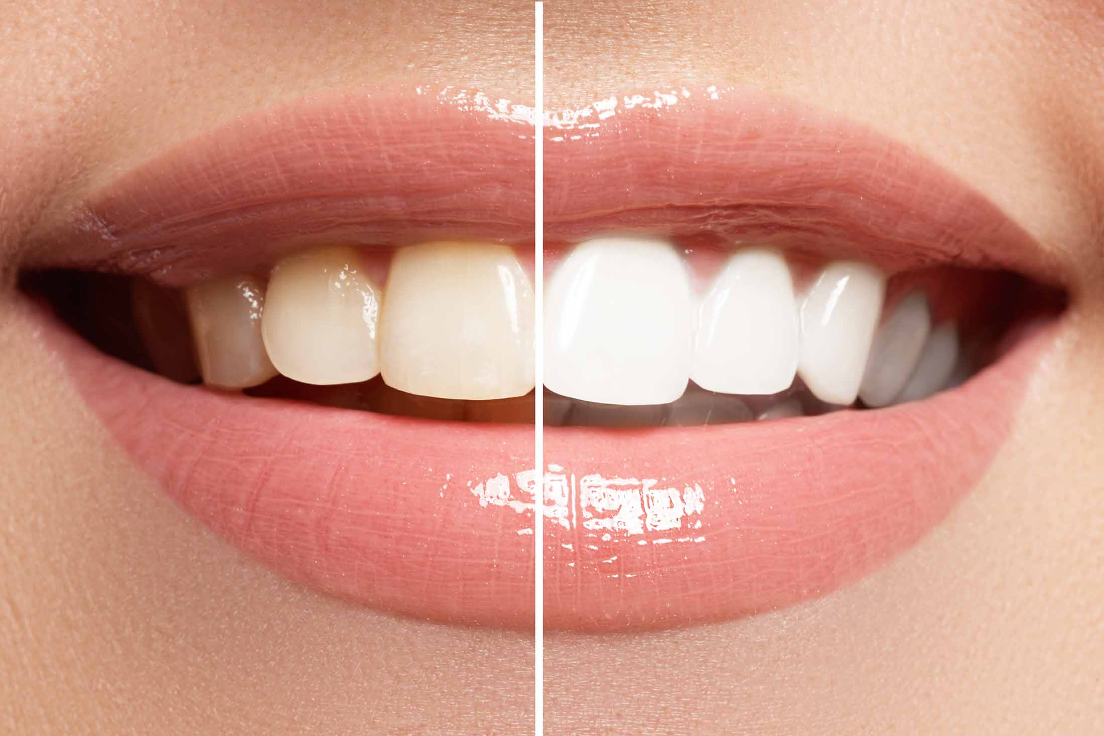 Teeth Whitening Mission Trails Dentistry